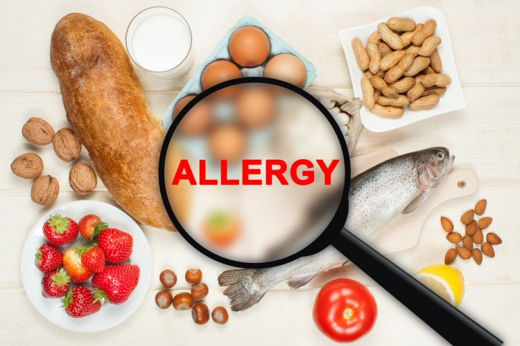 Countries with Highest Food Allergies