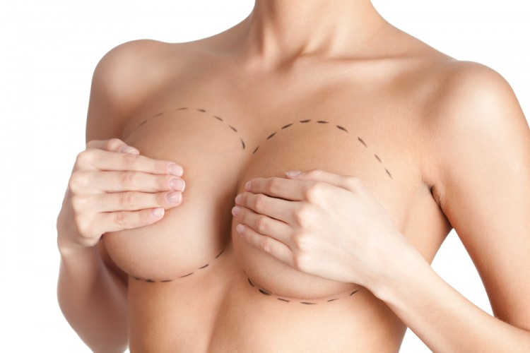 Most Popular Plastic Surgery Procedures - Breast Revision