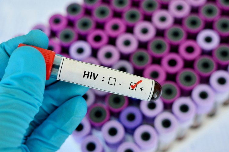 Countries With The Highest HIV Rates in Europe